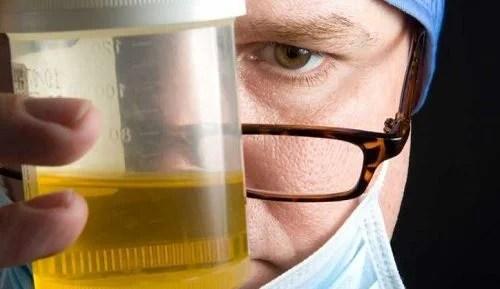 8 motivos por los que tu orina tiene mal olor — Mejor con ...