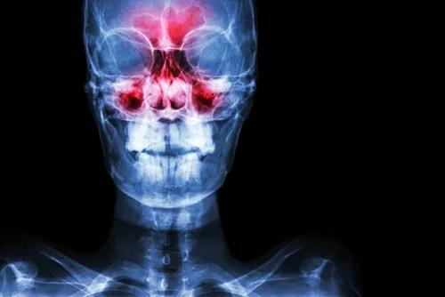 Imagen que muestra un cuadro de sinusitis aguda