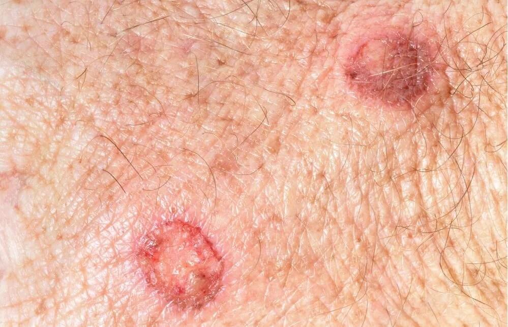 Los lunares y el melanoma