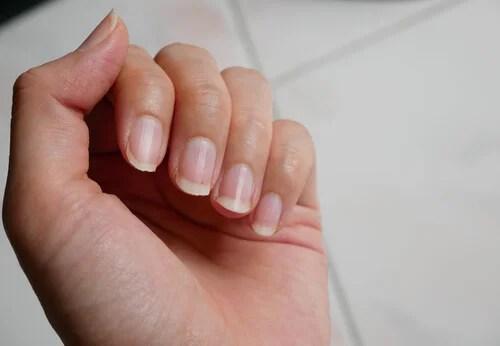 Por qué tenemos las uñas amarillentas