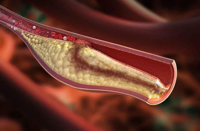 Nivel adecuado de colesterol