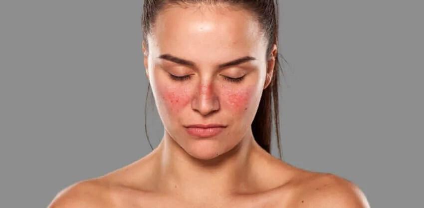 Mujer con lupus
