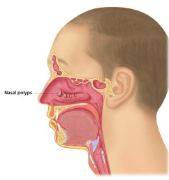 chronic rhinosinusitis nasal polyps u2013 melbourne ent group nose diagram mucus  [ 1100 x 1116 Pixel ]