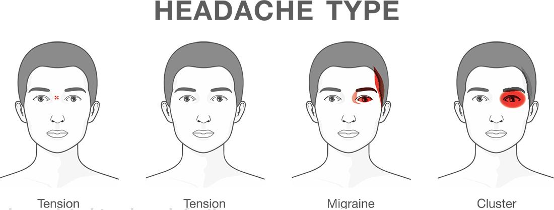 Information on Migraine