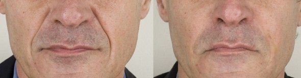 Melbourne Botox Anti-Wrinkle Injections Clinic for dermal fillers