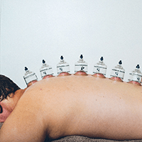 Cupping and Remedial Massage