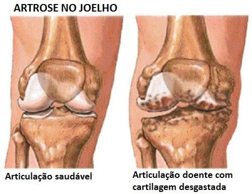 Resultado de imagem para imagem artrose doença