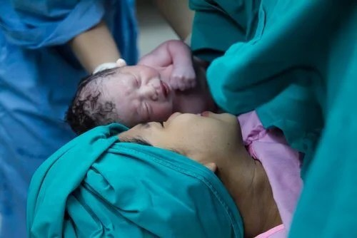 """Bebês nascidos por cesárea recebem """"banho"""" de bactérias vaginais"""