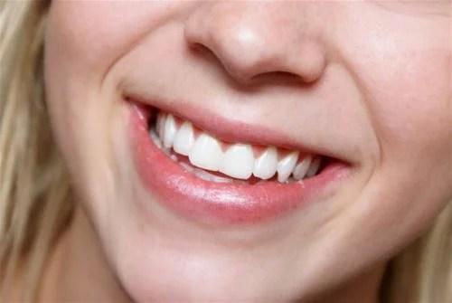 Sorriso, dentes saudáveis