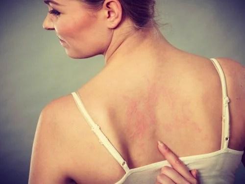 Alergias na pele