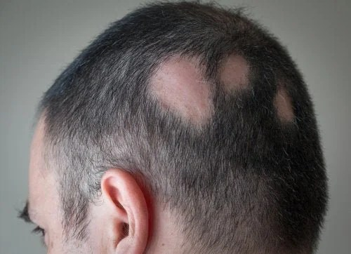 alopecia-500x362 Minoxidil: contra alopecia e perda de cabelo