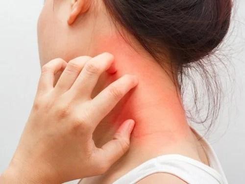 coceira-dermatite-500x375 O que é dermatite atópica? Tudo o que você precisa saber