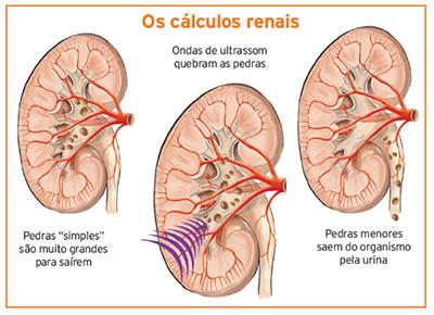 Cálculos renais tratados com ultrassons