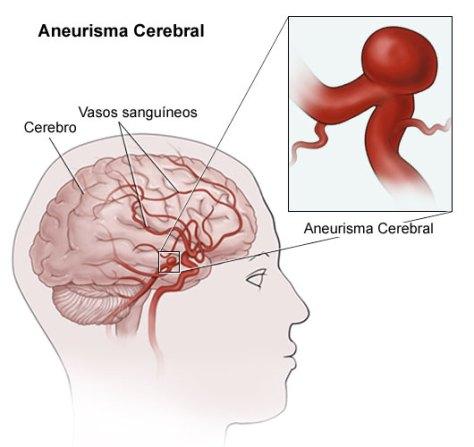 No ponto onde a parede da artéria é mais fraca forma-se um balão que pode rebentar