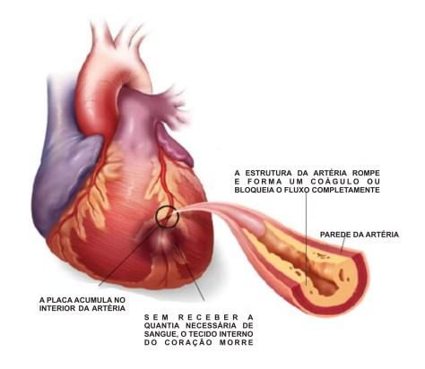 Um ataque cardiaco ocorre quando o fluxo de sangue de uma parte do músculo do coração fica bloqueado