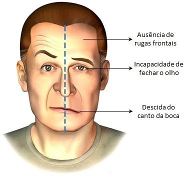 AVC sintomas faciais