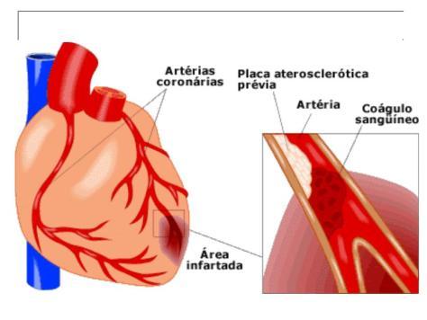 Localização das artérias coronárias e infarte do miocárdio