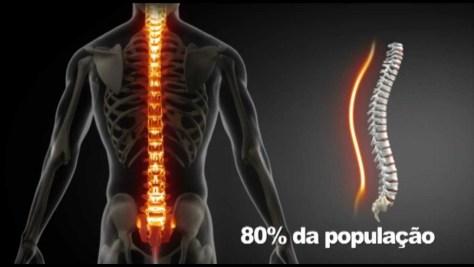 80% da população tem ou já teve dor de costas