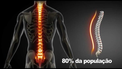 Dor de costas