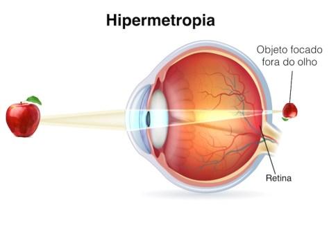 Hipermetropia melhorsaude.org melhor blog de saude