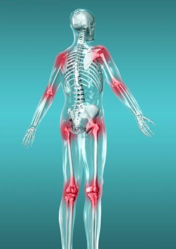 Artrite reumatoide melhorsaude.org melhor blog de saude