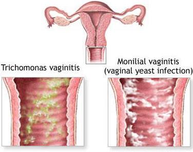 Trichomonas vaginalis melhorsaude-org melhor blog de saude