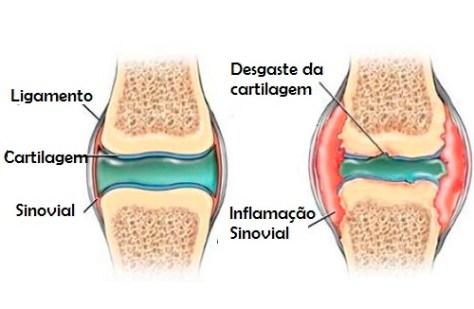Joelho cartilagem inflamada melhorsaude.org melhor blog de saude