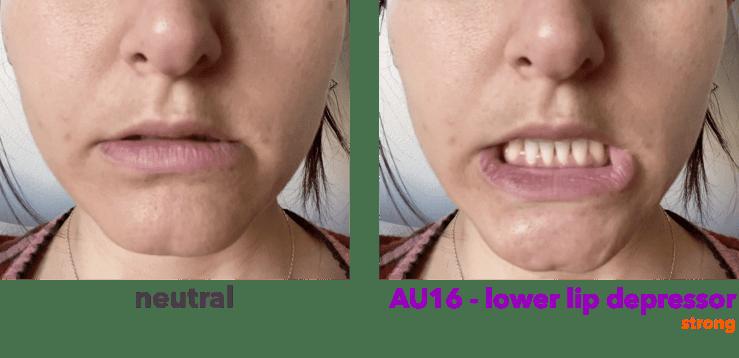 AU16 - depresor del labio inferior
