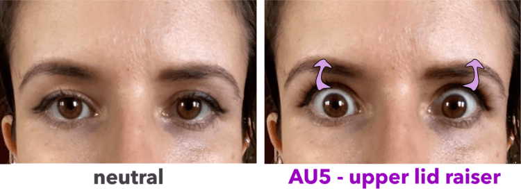 AU5 - upper lid raiser - Facial Action Coding System - levator palpebrae superioris - before vs. after