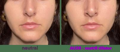 AU38 - nostril dilator