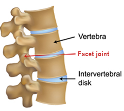 facet joint lateral 72 web