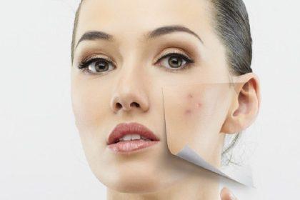 acne e1502688501938 Punya Kulit Rentan Berjerawat? Hindari 5 Bahan Skincare Ini