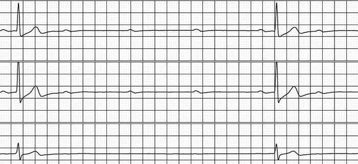 A Man with Sleep-Associated Symptomatic Bradycardia
