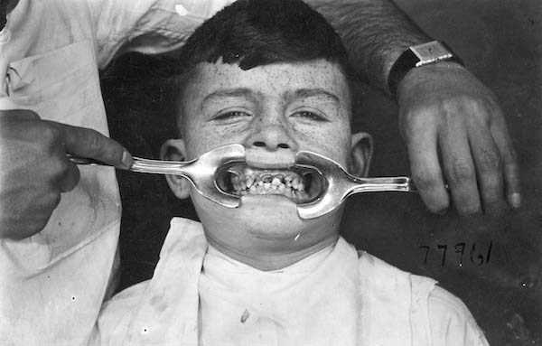 dental-equipment-from-the-past-5