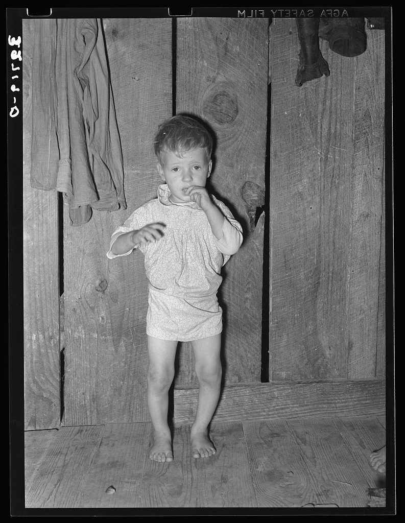 FSA photo of child in Jefferson, Texas, with rickets - Library of Congress