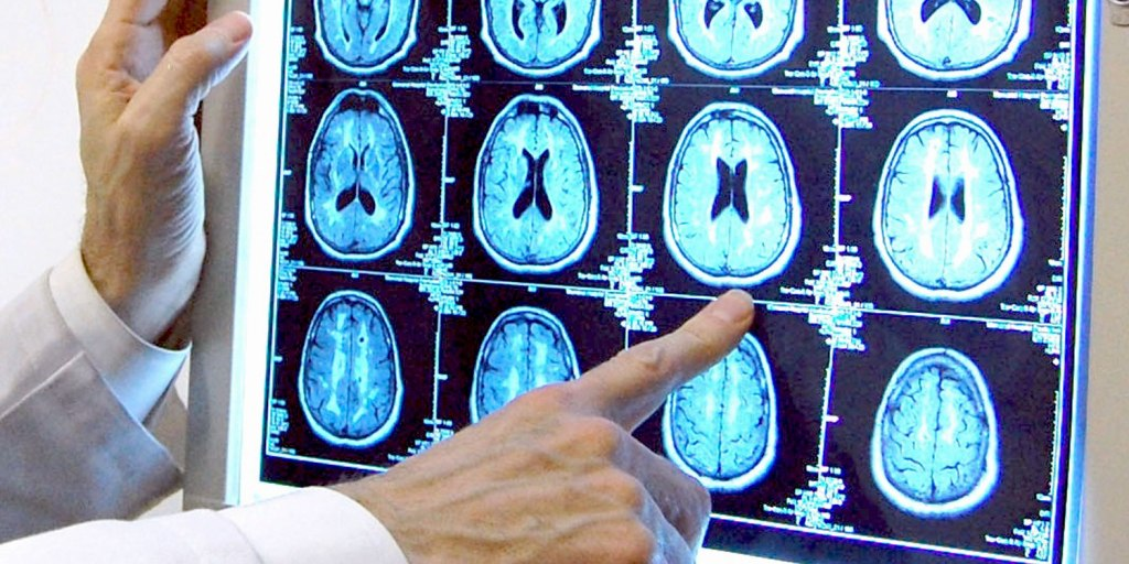 Dr. Stephen Salloway of the Memory and Aging Program at Butler Hospital points at brain scan images that show changes in the brain associated with the development of Alzheimer's disease.
