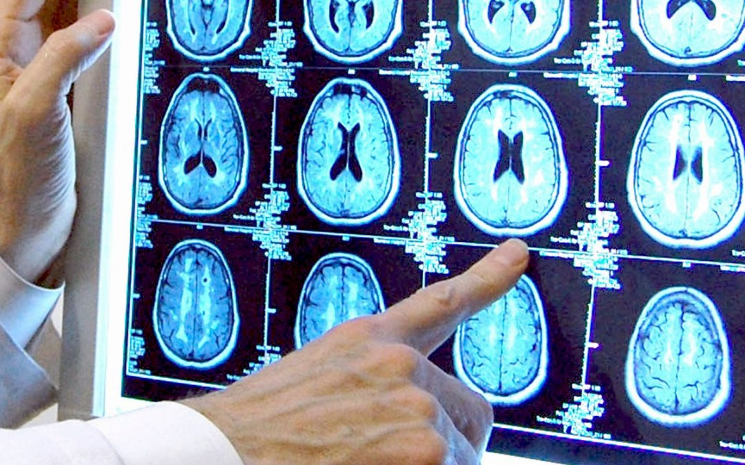 Butler Hospital among first in U.S. to launch new study of promising Alzheimer's treatment