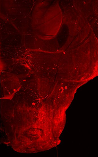SC blood perm