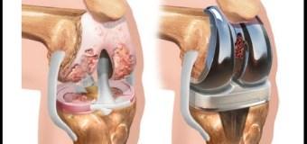 Jika Harus Operasi Lutut, Kita Wajib Ketahui Hal-Hal Penting Ini