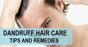 Dandruff Care Tips for Men Methods, Remedies for Dandruff Removal