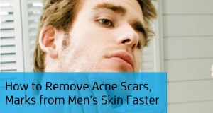 How to Remove Acne Scars, Pimples Marks, Dark Spots from Men's Skin Faster