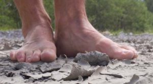 How To Treat Dry Cracked Feet