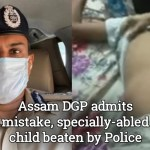 Assam DGP admits mistake, speacially-abled child beaten
