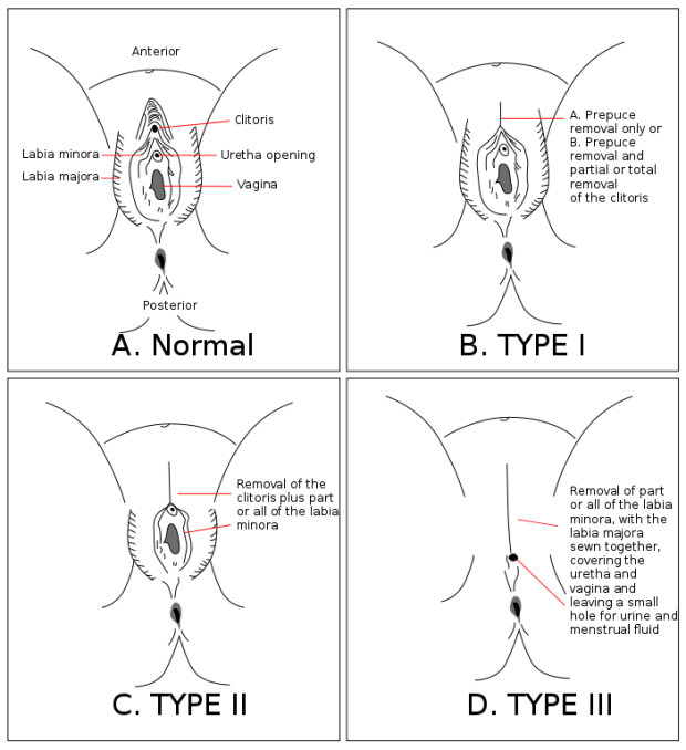 female genital mutilation diagrams: type I, type II, and type II (infibulation)