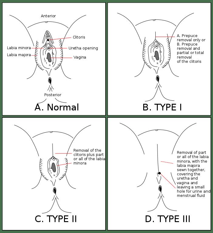 female genital mutilation diagrams: type I, type II, and type II (infibulation)