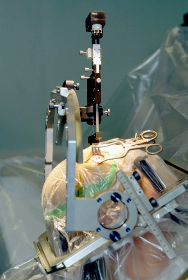 Deep brain stimulation implantation surgery, with head held still by metal frame