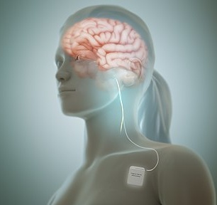 Diagram of vagus nerve stimulation