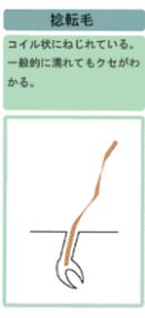 捻転毛の図解