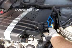 engine cover remove – MB Medic