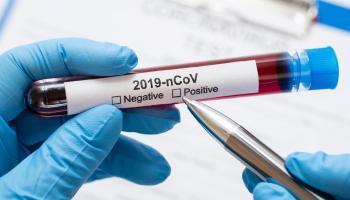 teste-novo-coronavirus-1583536024256_v2_1920x1279